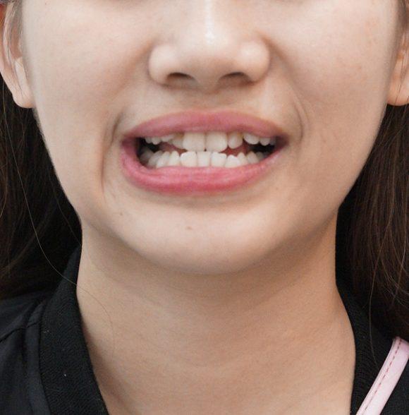 陳鈺婷醫師-Dr-Yu-Ting-Chen-article1-P12600x600-580x588