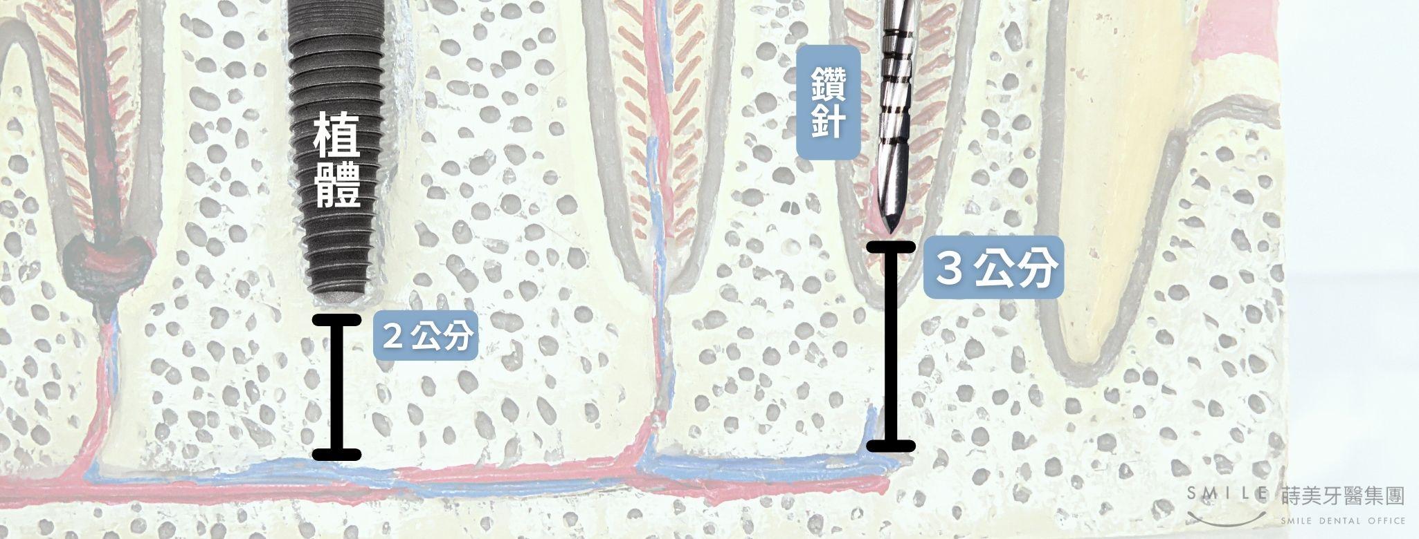 教你看懂X光片 (3)