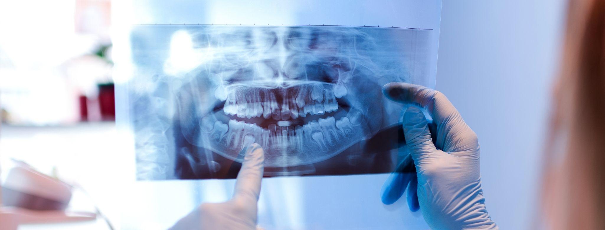 教你看懂X光片