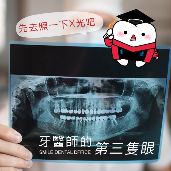 植牙有哪些地雷區教你看懂X光片