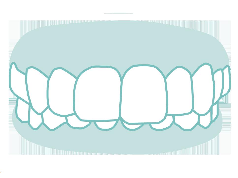 六種需矯正的牙齒_01