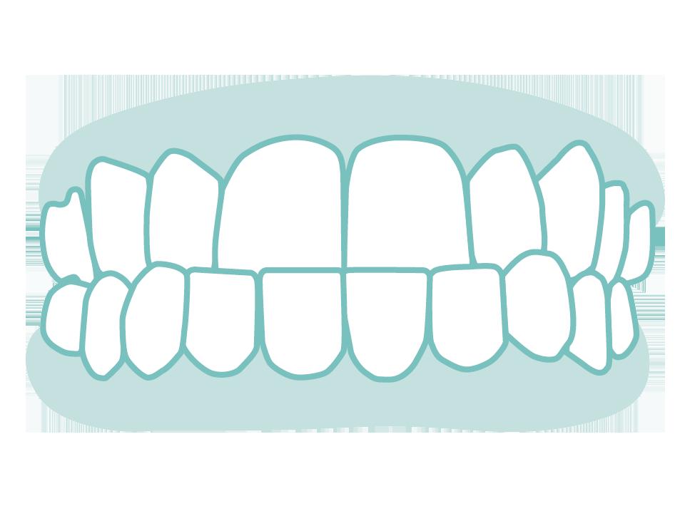 六種需矯正的牙齒_03