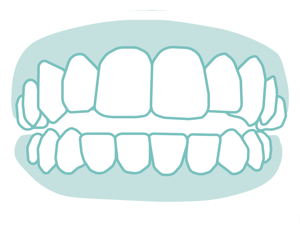 六種需矯正的牙齒_05