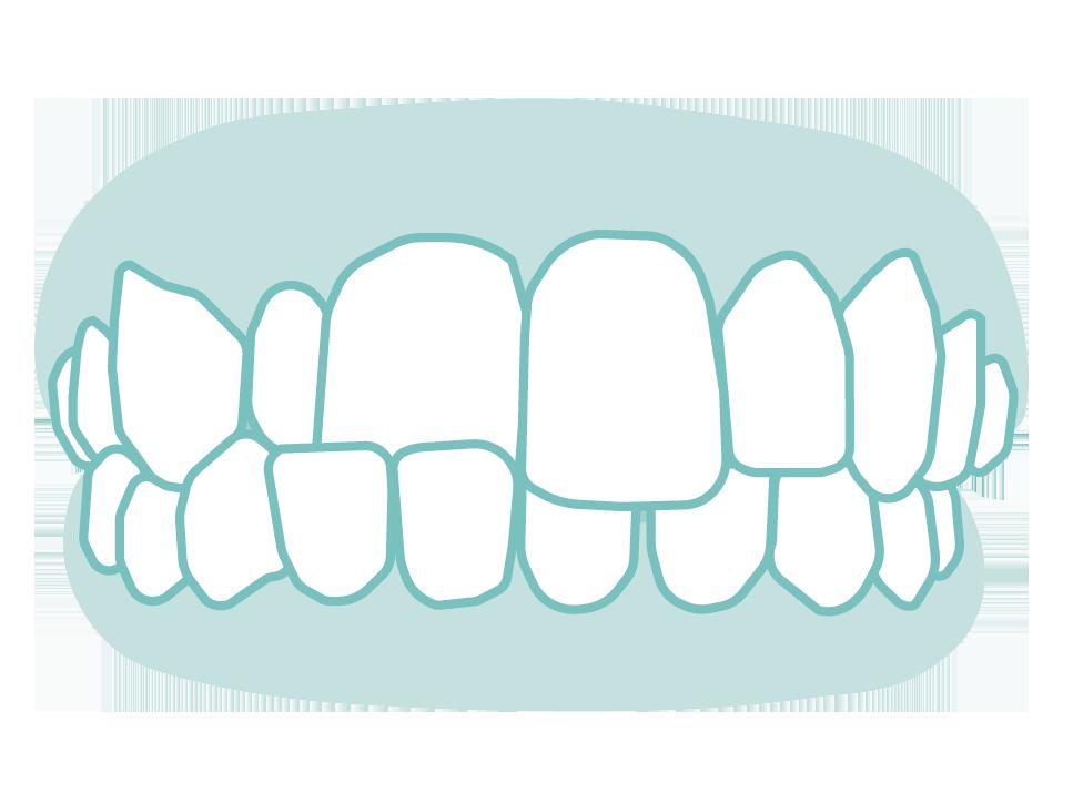 六種需矯正的牙齒_09