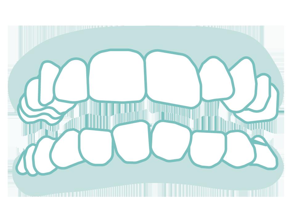 六種需矯正的牙齒_10
