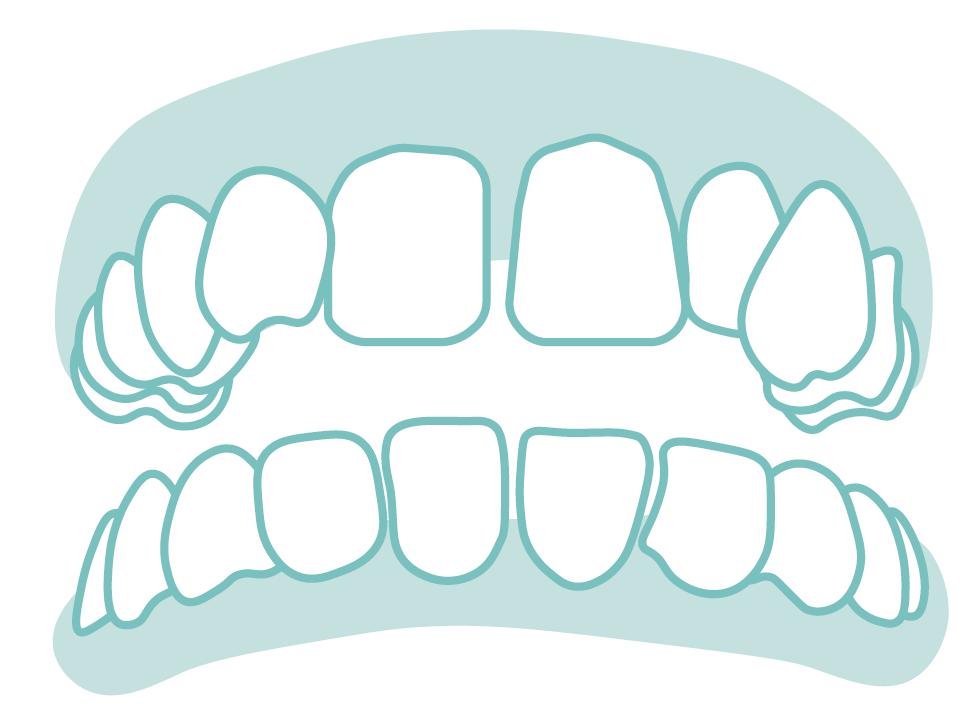 六種需矯正的牙齒_11